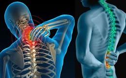 3 căn bệnh xương khớp tấn công dân văn phòng: 6 điều bạn nên làm ngay để không mang tật