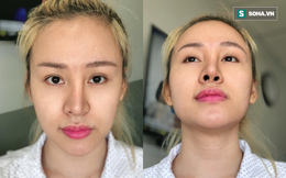 Bà Tưng gặp biến cố thẩm mỹ, sụn mũi sắp chọc đến gần mắt