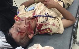 Lời khai kẻ cầm đá tấn công đại úy CSGT Hà Nội đến nhập viện cấp cứu