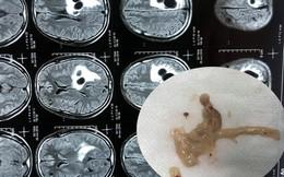 Đau đầu đi cấp cứu phát hiện 5 ổ sán lớn nằm trong não người đàn ông ăn tiết canh