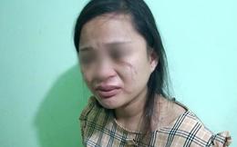 Mua đôi giày 135 ngàn, thai phụ 8 tháng bị mẹ chồng nói theo trai rồi xúi con đánh chảy máu mắt, bầm tím người