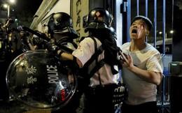 24h qua ảnh: Cảnh sát bảo vệ người bị thương ở Hong Kong
