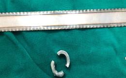 Cậu bé 11 tuổi đeo ốc vào dương vật, bác sĩ phải dùng cưa để tháo bỏ