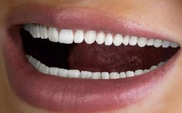 Quảng cáo làm trắng hàm răng đến… 60 chiếc, công ty nha khoa ngập trong bình luận chỉ trích
