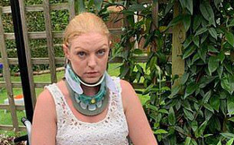 Cuộc sống 'quá sức chịu đựng' của người phụ nữ chỉ cần xoay đầu là bị gãy cổ