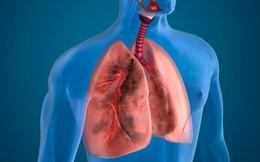 Bác sĩ cảnh báo dấu hiệu sớm của căn bệnh phổi nguy hiểm: Tấn công cả người trẻ tuổi