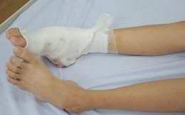 Bé gái 14 tuổi có bàn chân lạ, dáng đi bất thường do mắc căn bệnh hiếm