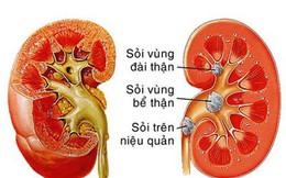 Bác sĩ thận - tiết niệu mách bạn cách đẩy lùi bệnh sỏi thận, không cần phẫu thuật