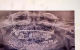 """Bé trai 7 tuổi kêu đau hàm, bác sĩ """"choáng"""" khi nhổ hơn 500 chiếc răng trong khoang miệng"""