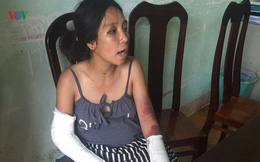 Công an điều tra vụ chồng đánh vợ mang bầu gãy tay, gãy chân