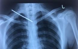 Thanh niên 22 tuổi bị bạn dùng thanh sắt đâm xuyên phổi vào tận xương sống ngực