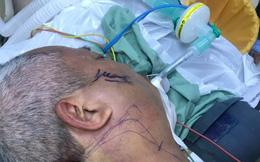 Người đàn ông bị cây sắt lớn đâm xuyên từ cổ đến xương hàm trong lúc trèo tường rào chặt cây