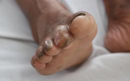 """Người đàn ông ở Hà Tĩnh bị vi khuẩn """"ăn thịt người"""" tấn công ngón chân"""