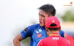Máu đổ ròng ròng trên mặt trung vệ U22 Việt Nam trong trận đấu ở vòng 23 V.League 2019