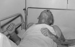 Ám ảnh bệnh nhân chào ra về để chết, BS nhắc mọi người cần ghi nhớ điều này khi bị chó cắn
