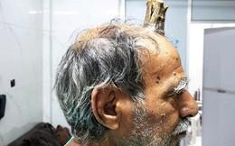 Người đàn ông có 'sừng quỷ' dài 10 cm mọc trên đỉnh đầu