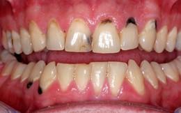 Chân răng bị đen có nguy hiểm không: Giải pháp làm trắng và ngăn ngừa răng xỉn màu