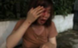 Người phụ nữ mang thai bị hàng xóm đang say xỉn đấm nhiều lần vào mặt