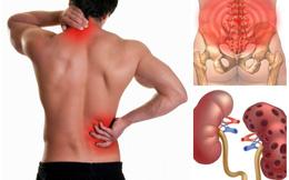 Nam giới đau lưng có phải bị mắc bệnh thận không: 4 yếu tố liên quan cần xem xét ngay
