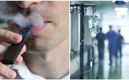 Nghiện thuốc lá điện tử ròng rã 3 năm, một học sinh lớp 11 phải nhập viện vì suy phổi nặng