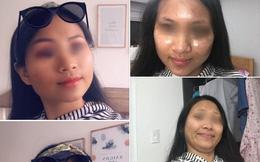 Đăng ảnh trước và sau chỉnh sửa, cô gái tự dìm mình để chứng minh: Dù mắt tinh cũng đừng tin ảnh gái trên mạng