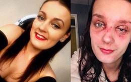 Trứng luộc phát nổ, thiếu nữ trẻ bị bỏng mắt, suy giảm thị lực