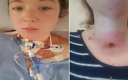 Mẹ bầu 7 tháng bị dao đâm vào chính họng bởi tai nạn nhiều người có thể mắc phải