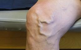 Nổi gân xanh ngoằn ngoèo dưới da rất có thể bạn đã mắc bệnh nguy hiểm này