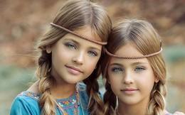 2 cô bé được gọi là 'cặp song sinh đẹp nhất thế giới' nay đã lớn phổng phao, có một điều mãi không thay đổi