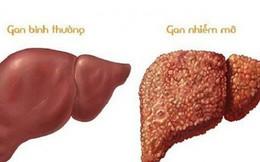Dược thiện cho người bệnh gan nhiễm mỡ