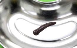 Kinh hoàng: Đỉa trâu 10cm, to bằng ngón tay sống trong cổ họng người đàn ông