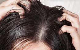 Những nguyên nhân không ngờ gây ra tình trạng nấm da đầu mà nhiều người không hề nghĩ tới