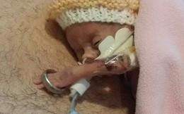 Bé gái sinh non 4 lạng trong bức ảnh từng gây xót xa cộng đồng mạng giờ đã lớn với ngoại hình không thể ngờ