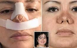 Đi hút mỡ để cải thiện ngoại hình, cô gái trẻ gặp phải bác sĩ 'có tâm' khuyến mãi thêm chiếc mũi thảm họa