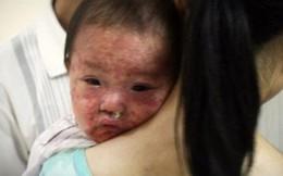 Hàng nghìn người mắc sởi do không chịu tiêm vắc xin phòng bệnh