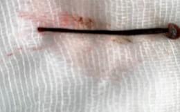 Rửa mặt ở suối, nữ sinh bị đỉa 4 cm chui vào sống trong mũi