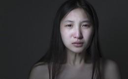 Xót xa cô gái bị bố mẹ bạo hành từ nhỏ, đánh mắng suốt ngày, cuối cùng nhận ra mình chỉ là con nuôi