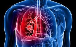 Quan niệm sai lầm về những nguy cơ dẫn tới ung thư phổi