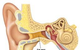 Nhiều ráy tai có đáng lo?