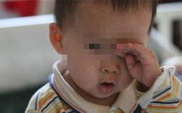 Con trai 2 tuổi bị sưng đỏ mắt, bố đưa đi khám liền kinh hãi tột độ khi bác sĩ lôi ra 'dị vật' vẫn còn động đậy ở trong mắt bé