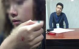 Kẻ sàm sỡ nữ sinh trong thang máy chỉ bị phạt 200 nghìn đồng, cô gái thốt lên: 'Rất buồn và bất bình'