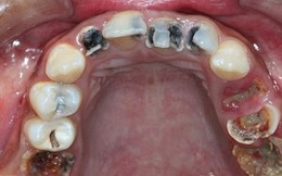 90% người Việt mắc bệnh răng miệng