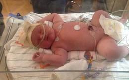 Bé gái sinh ra có cân nặng 'khủng' chưa từng thấy, phá vỡ mọi kỷ lục của bệnh viện dù trước đó người mẹ được cảnh báo rằng sẽ không thể thụ thai