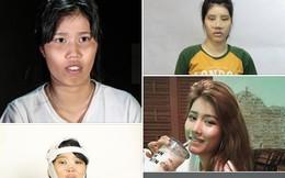 """Cô gái 22 tuổi từng bị chê """"về Bến Tre nạo dừa"""" và cuộc đại phẫu để thay đổi nhan sắc khiến bố chẳng nhận ra con gái"""