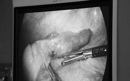 Viêm ruột thừa do nuốt xương cá nhiều năm không hay biết