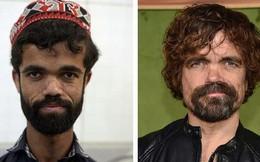 Anh bồi bàn Pakistan bất ngờ gây sốt vì có ngoại hình giống hệt tài tử 1,35 mét trong 'Game Of Thrones'