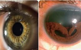 Chuyện gì sẽ xảy ra nếu mắt bạn mất đi tròng đen? Đó là hiện tượng có thật đấy