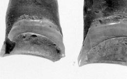 Từ một cái răng 4000 năm tuổi, khoa học giải quyết được câu hỏi khó nhất trong ngành khảo cổ: người chết đã từng làm nghề gì?