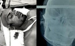 Ấn Độ: Bị thanh sắt dài gần nửa mét đâm xuyên qua đầu, công nhân xây dựng vẫn may mắn thoát chết