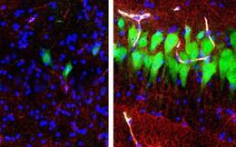 Hồi sinh được phần não đã chết hẳn 4 tiếng - khoa học đã làm thế nào vậy?